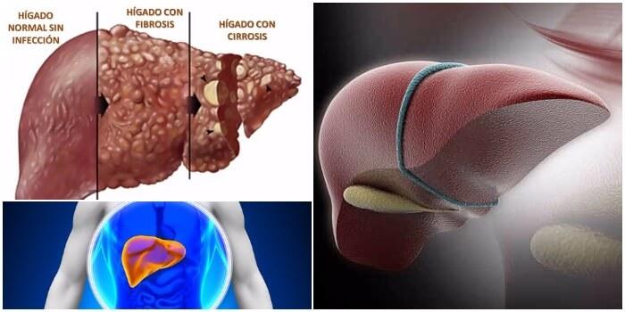 daño hepatico cronico pdf 2017