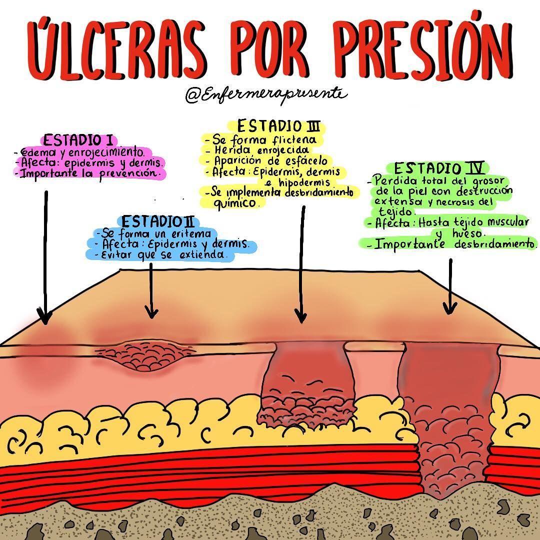 clasificacion de las ulceras por presion pdf
