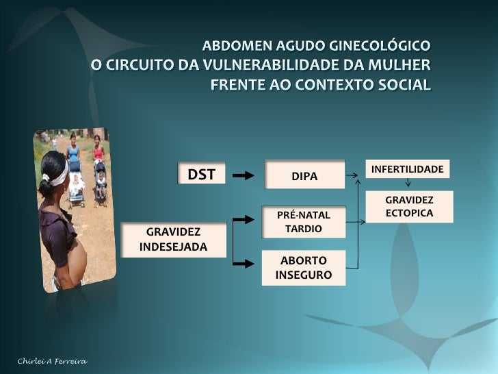 abdomen agudo vs ginecologico pdf