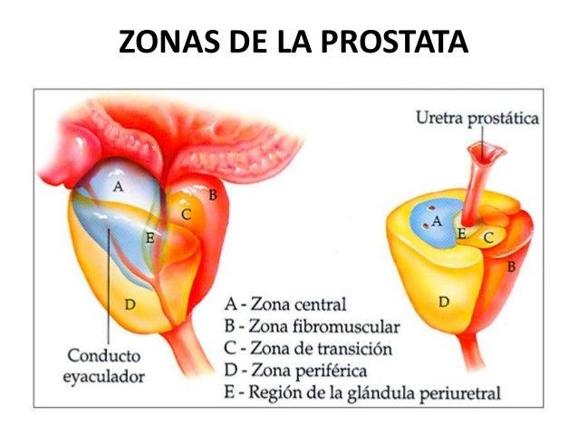 cancer a la prostata pdf