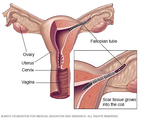 criterios para esterilizacion quirurgica femenina pdf