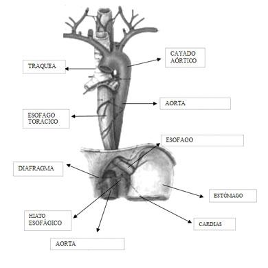 cancer de esofago fisiopatologia pdf