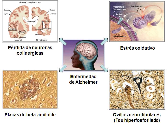 definicion demencia tipo alzheimer pdf