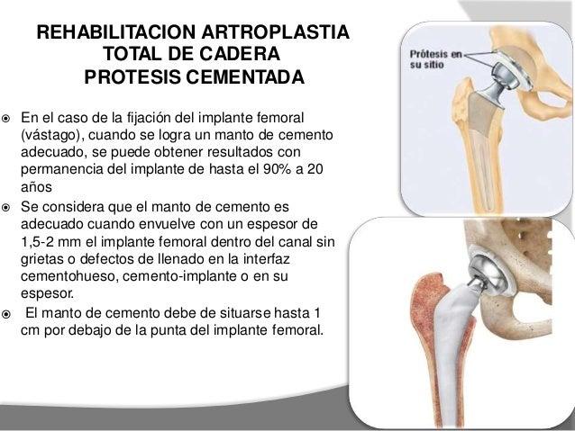 artroplastia total de cadera rehabilitación pdf