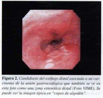 cancer de la union gastroesofagica pdf