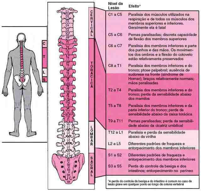 atrofia muscular espinal tipo 2 pdf