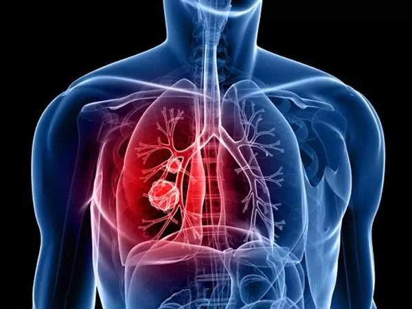 acido lactico pdf medicina interna