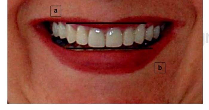 analisis de la sonrisa pdf