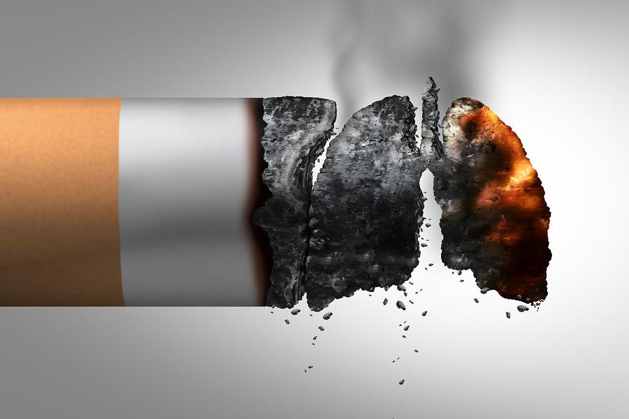 cancer de pulmon por tabaquismo pdf