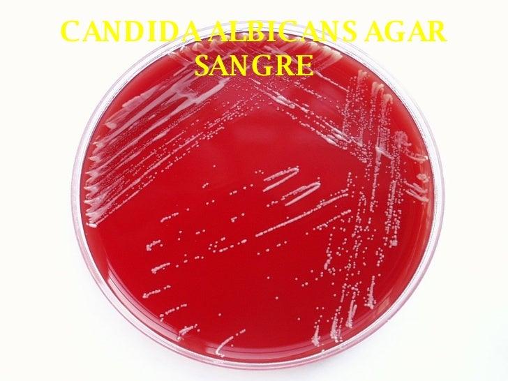 bacterias hemoliticas en agar sangre pdf